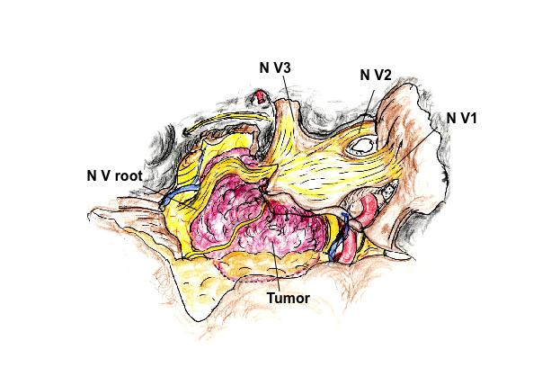 経錐体骨1