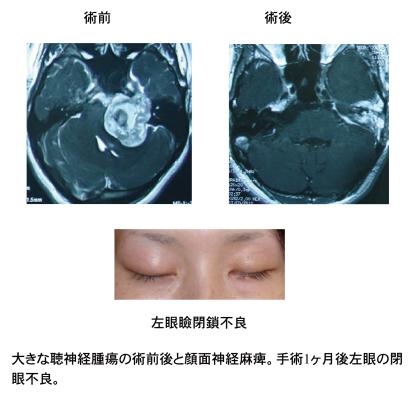 聴神経test 3